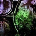 Tekrarlayan GBM (beyin tümörü) tedavisinde son gelişmeler - MGMT metilasyonu