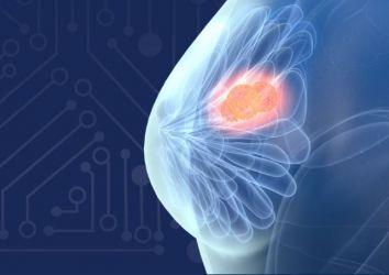 Dijital meme tomosentezi için yapay zeka teknolojisi, FDA onayı aldı