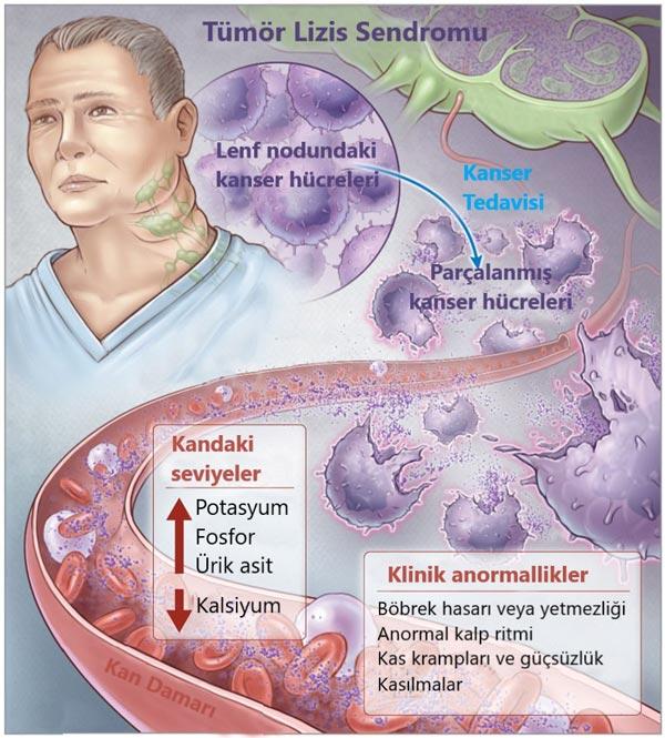 tumor lizis sendromu nedir resimli anlatım
