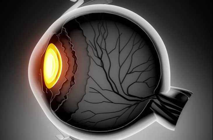Uveal (göz) melanom için pembrolizumab artı entinostat ve son gelişmeler