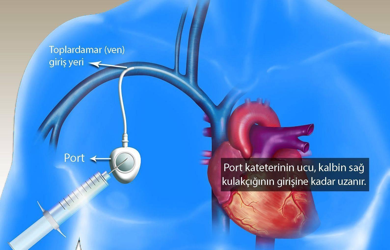 venöz port kateteri nedir santral venöz kateter onkoloji