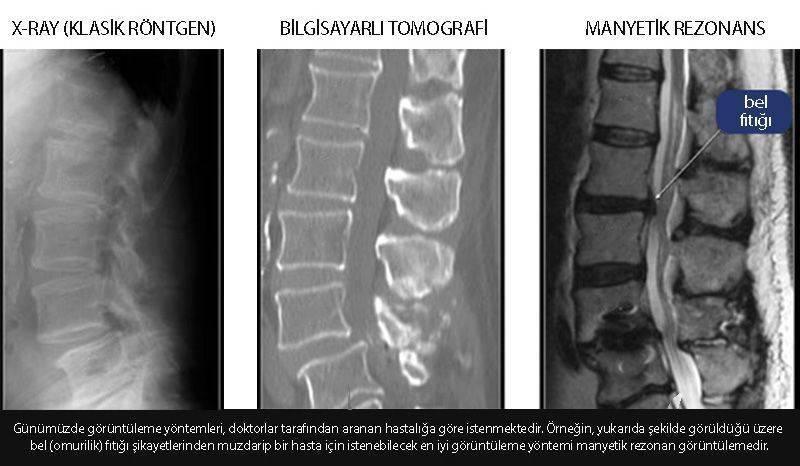 xray röntgen bilgisayarlı tomografi manyetik rezonans karşılaştırması