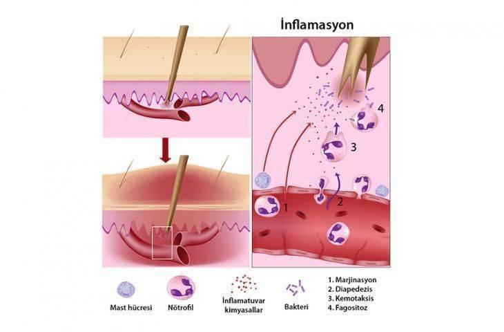İnflamasyon - Yangı - İltihaplanma nedir?