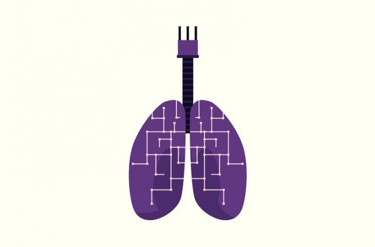 Yapay zeka gözden kaçan akciğer tümörlerini yakalayabilir