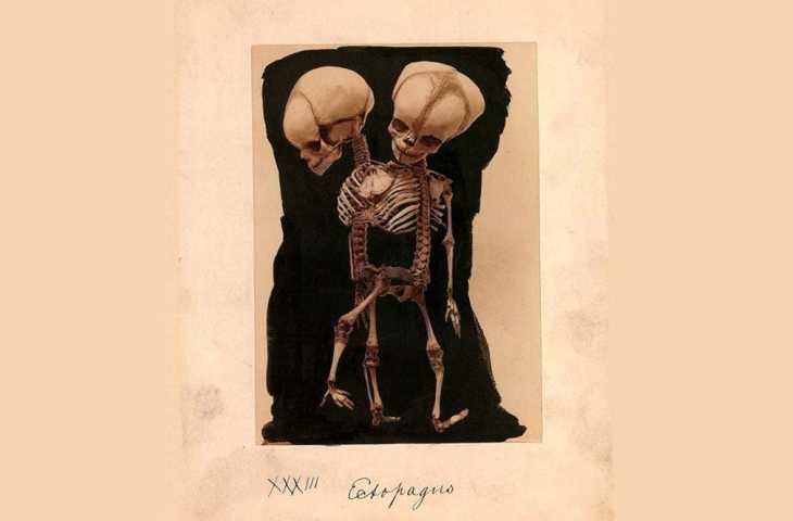 Yapışık İkizlerin Ayrılması 1689