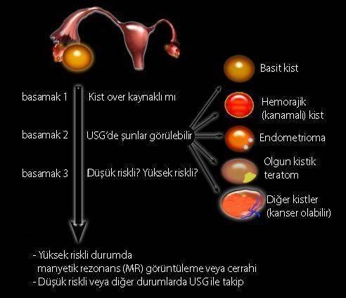 yumurtalık over kisti teşhisinde ultrason usg basamakları