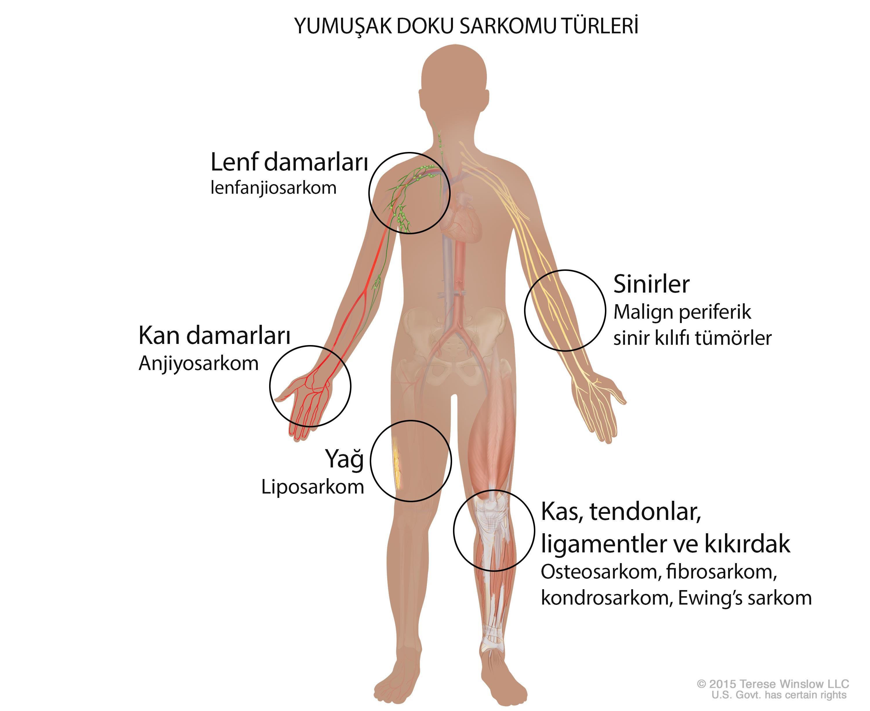 yumuşak doku sarkomu türleri çeşitleri