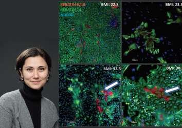 Kandaki serbest yağ asitlerinin meme kanseri büyümesini desteklediği keşfedildi